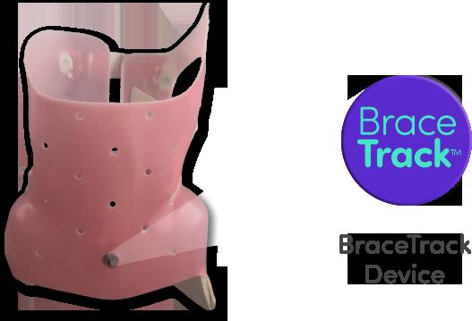 BraceTrace Device